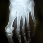 turf toe injury